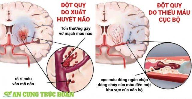 Hai dạng đột quỵ não phổ biến thường xảy ra